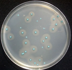 Oxoid Chromogenic Listeria Agar. Blue colonies - Listeria sp., blue colonies with opaque white halos - Listeria monocytogenes