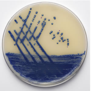 Oxoid Brilliance MRSA 2 Plate